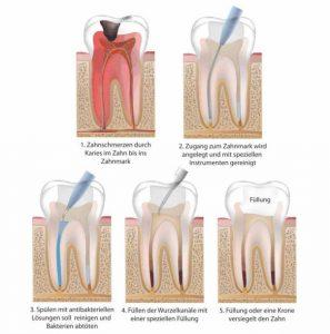 Ablauf einer Wurzelbehandlung - Zahnwurzelentzündung - Zahnarzt Bremen Nord