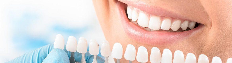 Bleaching Zahnaufhellung weiße Zähne bei Zahnarzt Bremen Vegesack