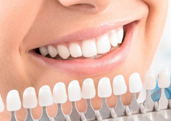 Bleaching Zahnaufhellung weisse Zähne bei Zahnarzt Bremen Nord