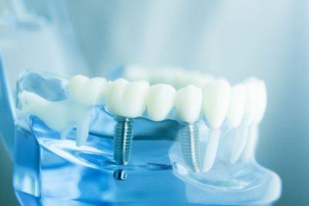 Fester Zahnersatz - Implantat-getragener Zahnersatz bei Zahnarzt Bremen Nord Vegesack