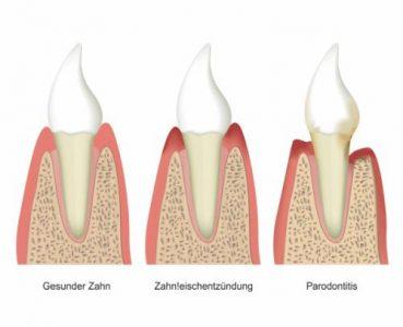 Verlauf einer Parodontose, Parodontosebehandlung Bremen Nord