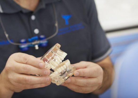 Premium Implantate Bremen Nord, Zahnimplantate im Zahnzentrum Fluke