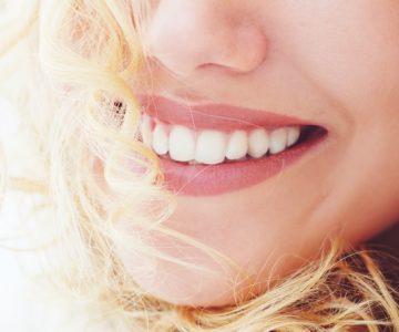 Schöne weisse Zähne mit Bleaching Zahnaufhellung im Zahnzentrum an der Fluke Bremen Vegesack