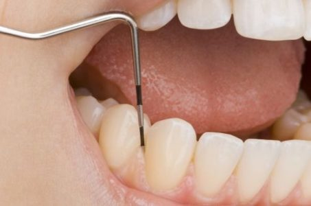 Zahnfleischschwund bei Parodontose, schonende Parodontitisbehandlung bei Zahnarzt Breme Nord