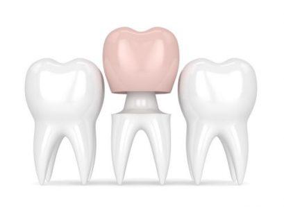 Zahnkrone - hochwertiger Zahnersatz bei Zahnarzt Bremen Nord Vegesack, Zahnzentrum an der Fluke