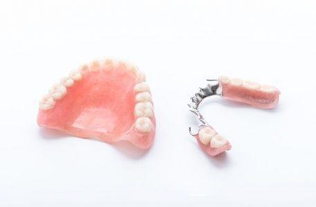 Zahnprothese, Teilprothese bei Zahnarzt Bremen Nord Vegesack, Frank Bräuer