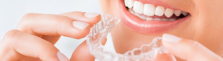 Zahnstellungskorrektur bei Zahnarzt Bremen Nord Vegesack - schiefe Zähne mit unsichtbarer Spange korrigieren