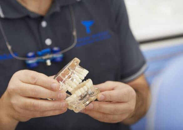 Implantate bremen nord, zahnimplantate zahnzentrum fluke