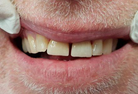 CEREC Krone fügt sich nahtlos in die Zahnreihe ein - Zahnzentrum an der Fluke Bremen