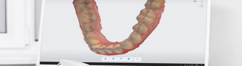 CEREC Zahnersatz an einem Tag bei Zahnarzt Bremen Nord Zahnzentrum Fluke