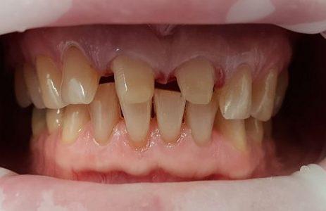 Präparation der Zähne vor CEREC Zahnersatz, Zahnzentrum Fluke Bremen Nord