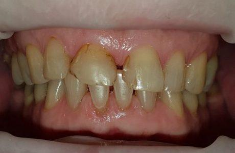 Zahnsituation vor einer CEREC Behandlung Zahnarzt Bremen Nord