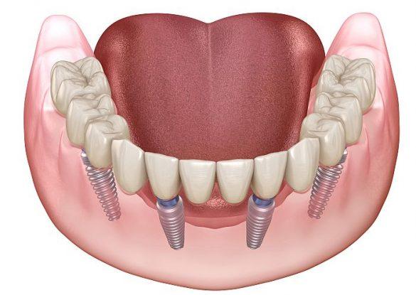 Feste neue Zähne auf 4 Implantaten, Sofortimplantate Zahnarzt Bremen Nord