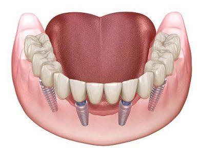 Zahnersatz auf 4 Implantaten Zahnzentrum Fluke Bremen Nord