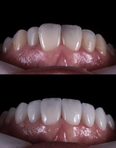 Vor und nach einer Behandlung mit Veneers - Keramik Zahnverblendung in Bremen Nord